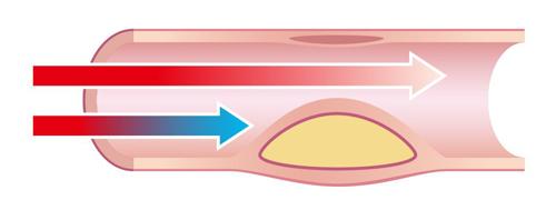 コレステロールと血管の図