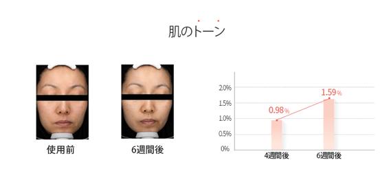 家庭用プラズマ美顔器AURORA+オーロラプラス肌のトーン