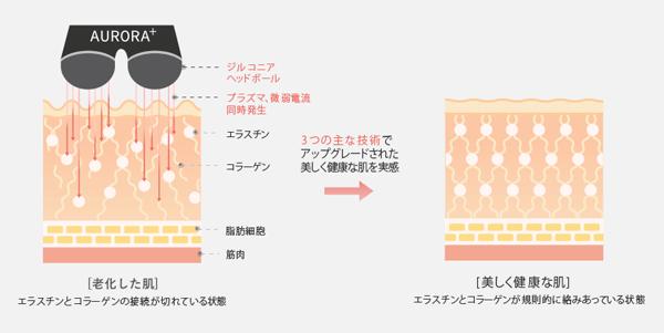 プラズマ美容機器AURORA+の3つの主な技術の効果1