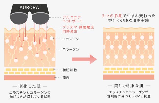 家庭用プラズマ美顔器AURORA+オーロラプラス 3つの働き2