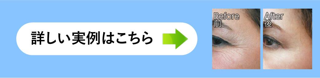bn-example